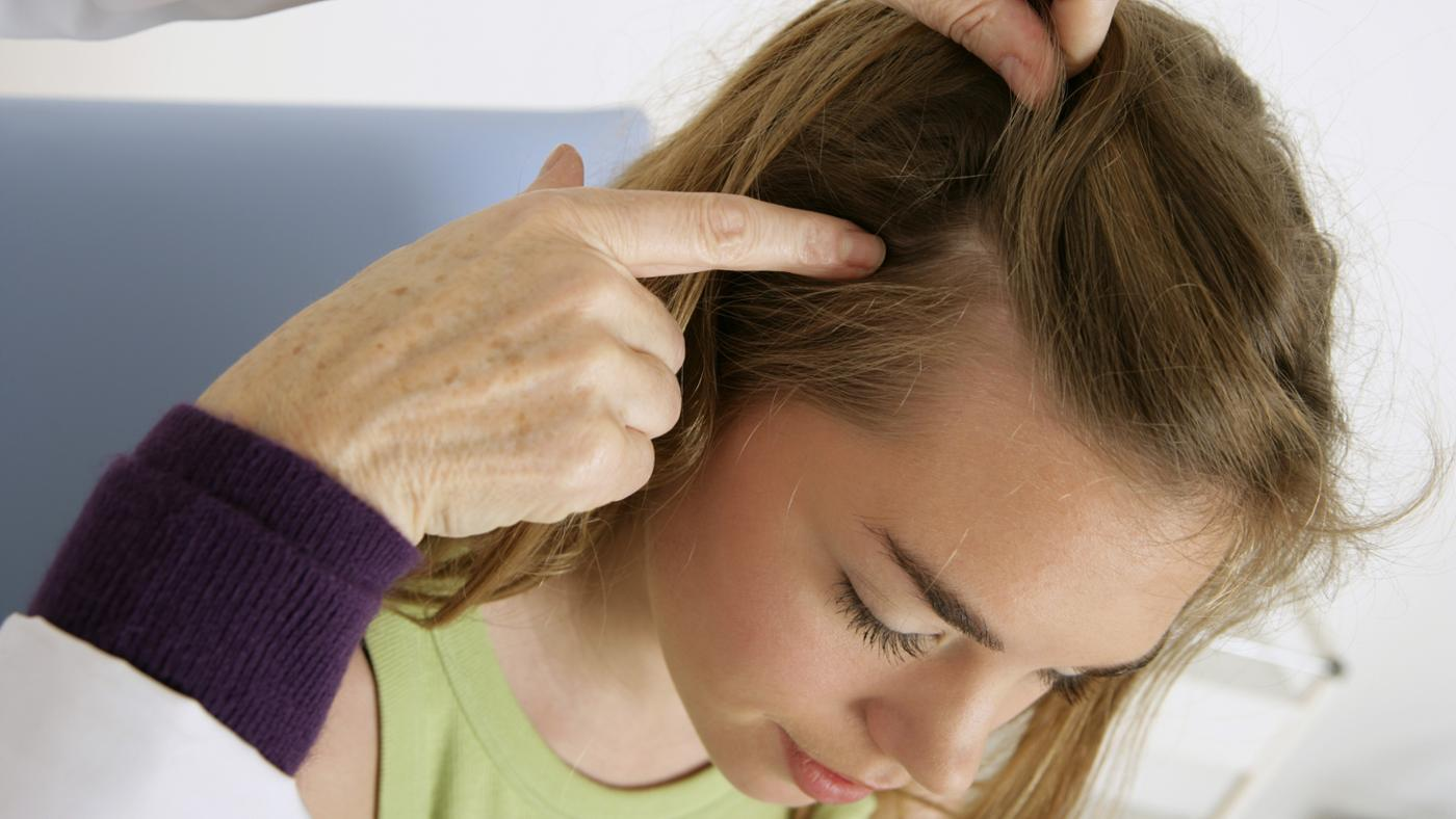 Jojoba-oil-for-hair-to-protect-from-infections