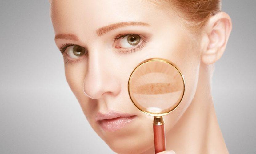 skin-inflammation