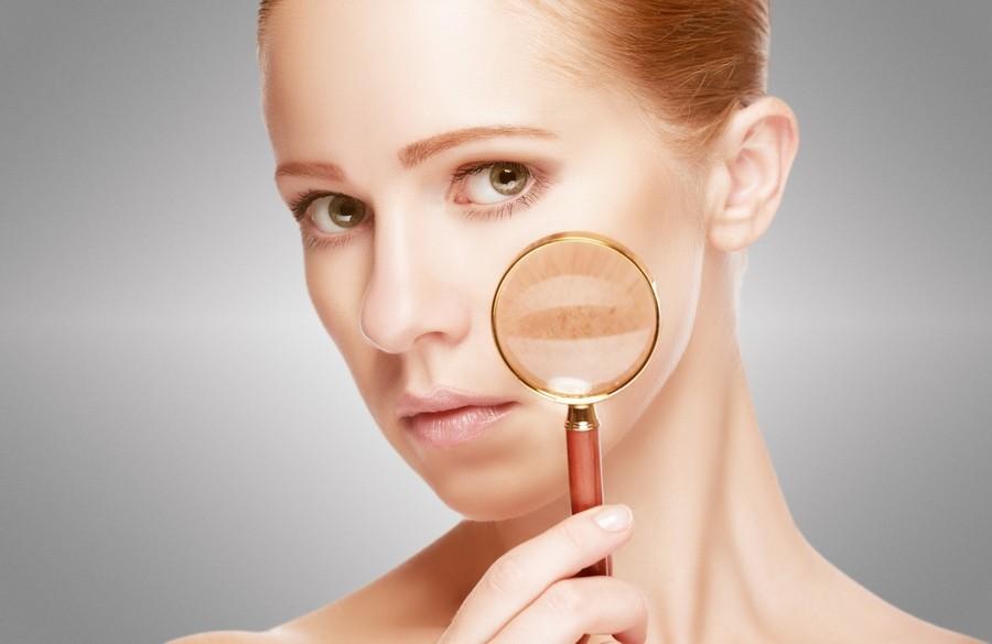 Elderflower-to-improve-skin-conditions